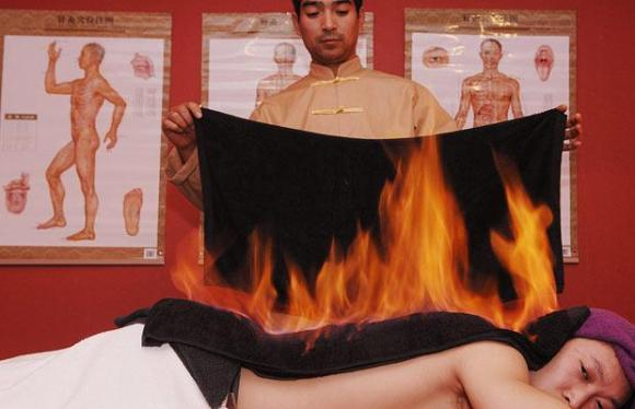 Chinese Fire Treatment